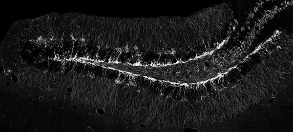 Newborn neurons in the dentate gyrus of an adult MT/MG NestinCreERT2 mouse