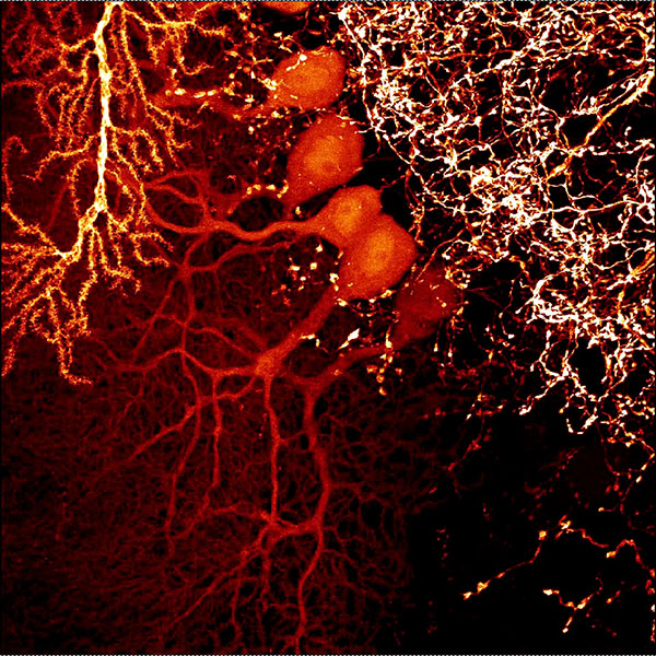 Neurons in the rat flocculus. False colours image. Dr VC Wimmer